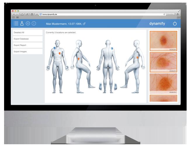 Dynamify Software zur Verlaufskontrolle für die Dermatoskopie